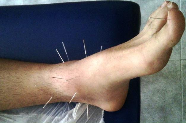 Acupuntura tratamiento del dolor en Colmenar Viejo
