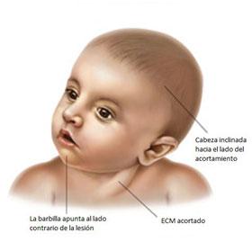 Fisioterapia tortícolis congenitca tratamiento en Colmenar Viejo