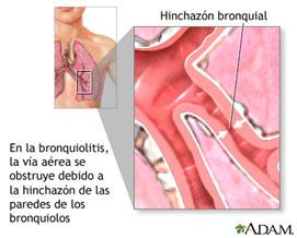 Fisioterapia Bebés Bronquitis