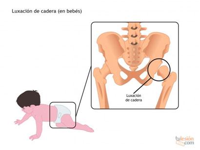 Tratamiento luxación congénita cadera en bebés mediantes fisioterapia y osteopatía