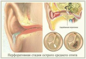 tratamiento otitis con osteopatía en Colmenar Viejo